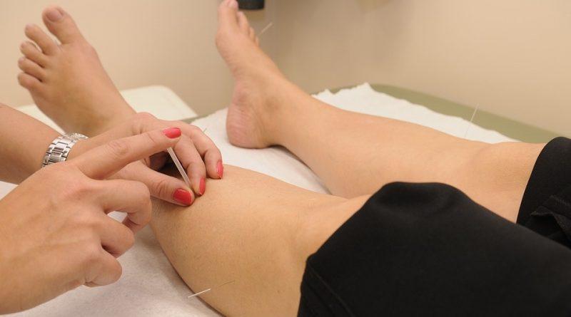 acupunctuur knieartrose