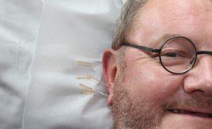 acupuntuur en artrose