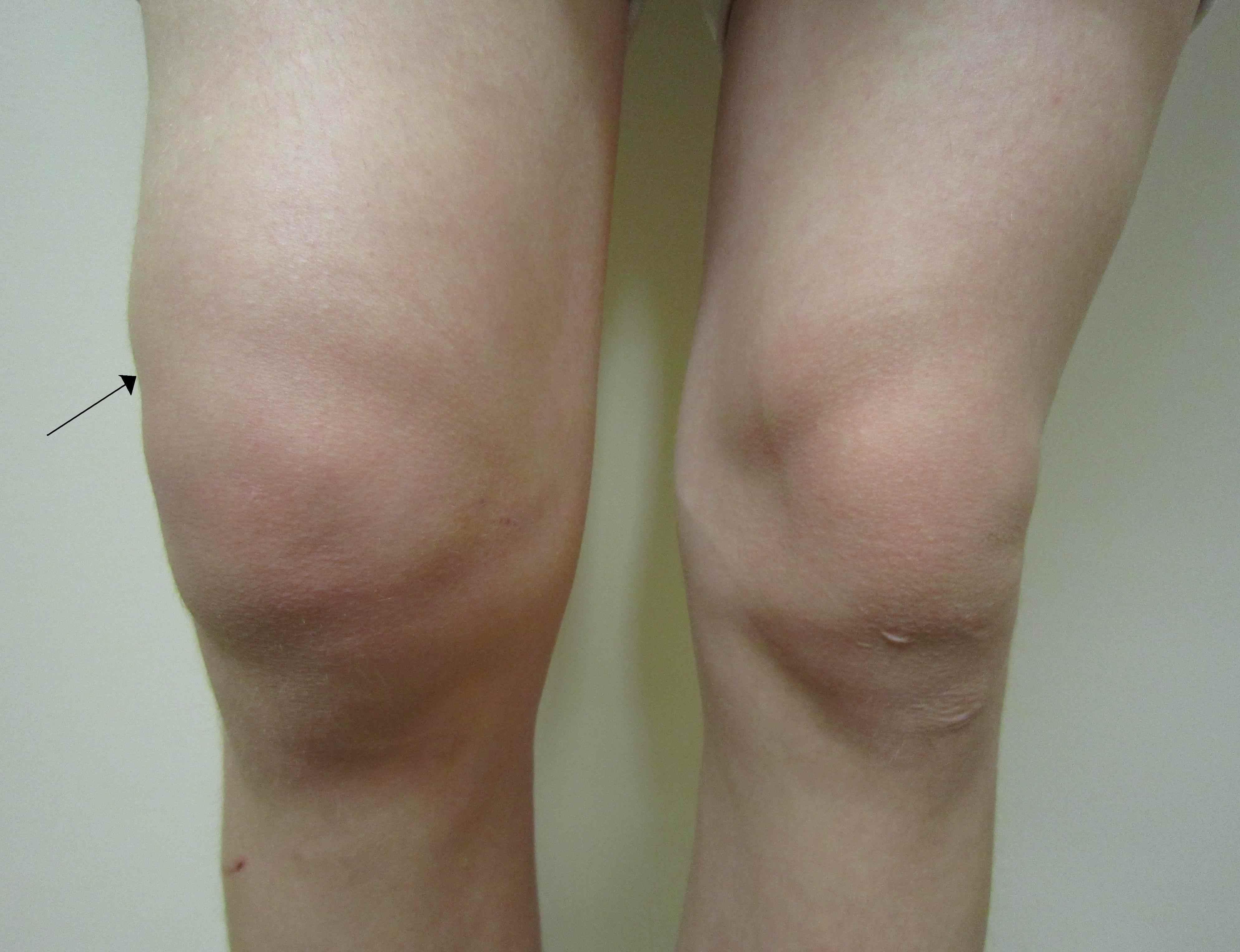 krakende knie zonder pijn